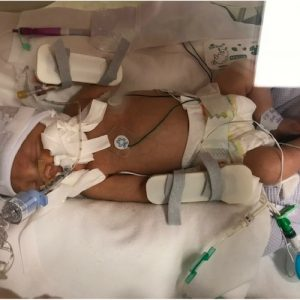 Premature baby in an incubrator